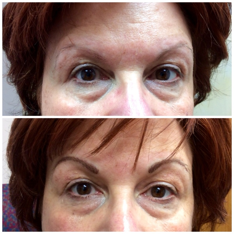 Before and After Permanent Makeup Tattooing, Merrimack, NH