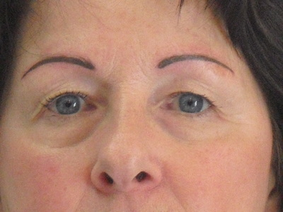 Woman After Image of Eyebrows, Merrimack, NH