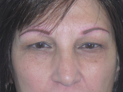 Woman After Image of Eyebrows Being Done, Merrimack, NH